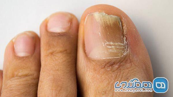 6 راه حل خانگی برای درمان قارچ ناخن پا